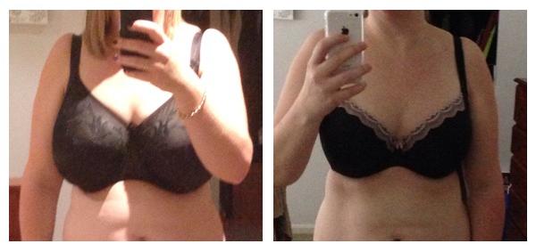 Amanda-Breast-Reduction-3-cropped
